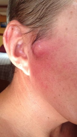 Cyst growing and infected
